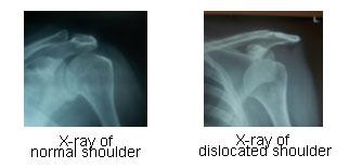Shoulder Arthoscopy