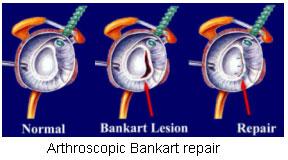 Bankart Repair