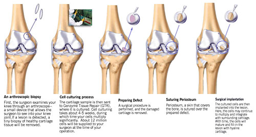 8a0822c281 Cartilage Injuries | JointSurgery.in