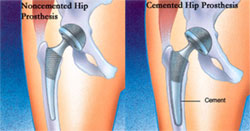 Types Of Hip Replacement Jointsurgery In
